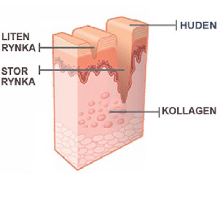 Bilden visar varför vi behöver kollagen för att strama åt huden kring ögonen.