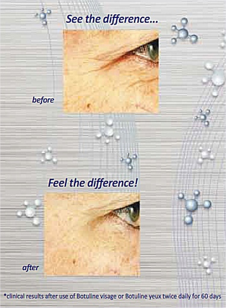 Botuline Ögon