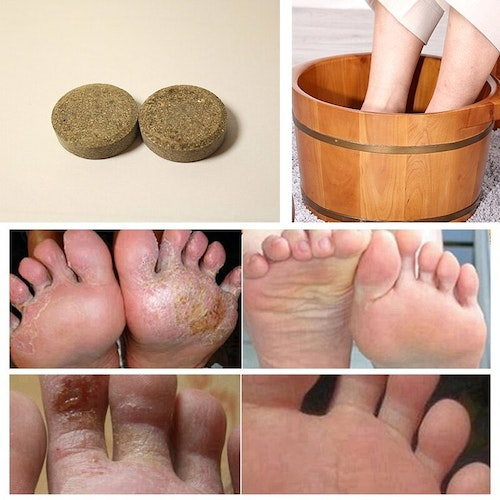 Anti Svamp Detox Foot