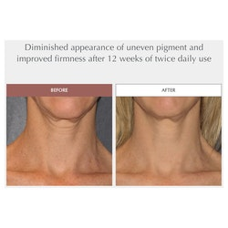 Toning Neck Cream