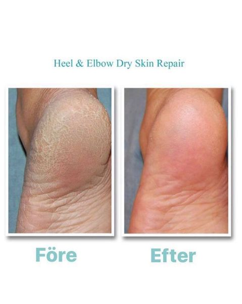 Heel and Elbow