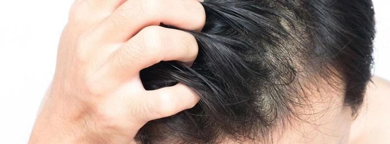 Känslig hårbotten?