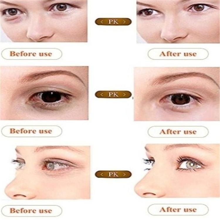 Återfuktande ögonkräm för att ta bort mörka cirklar, ögonpåsar, reparera rynkor