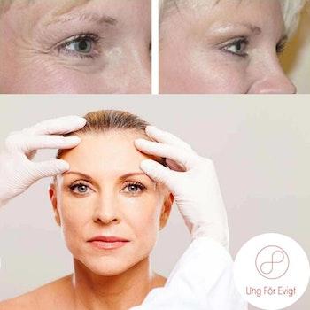 Botox ett område inklusive uppföljning i Stockholm