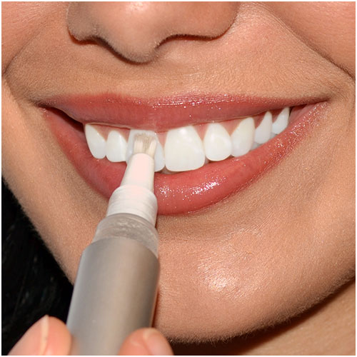 Tandblekningspenna