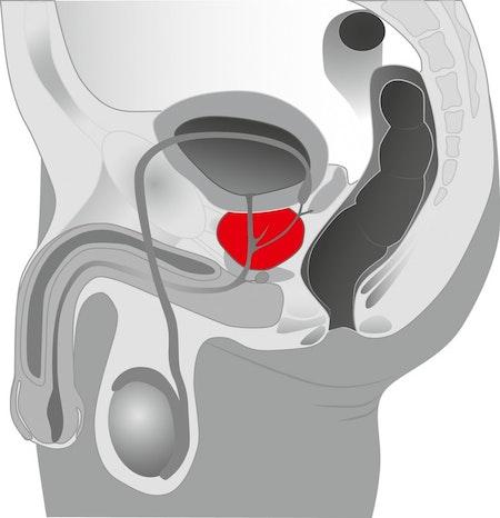 Tentacular Tease Prostate Massager
