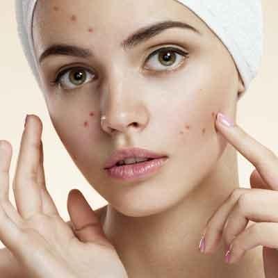 Ansiktskräm fet hud