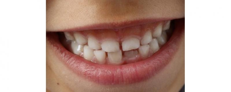 Hur lär du ditt barn att borsta tänderna på ett bra sätt?