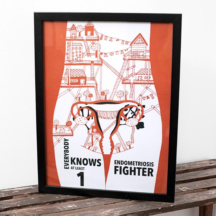 2:A SORTERING Endometrios print/poster A4 (nr.2)